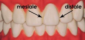 lato-mesiale-distale-denti