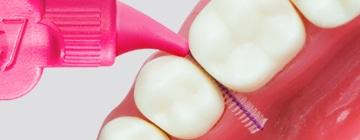 scovolino-denti (2)