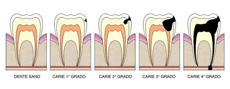 carie-denti