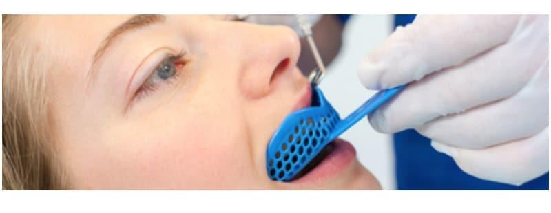 impronta dentale | G7Smile